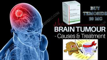 Buy Temoside 20 mg | Alldaygeneric