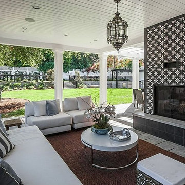 Outdoor Sitting Area & Fireplace | Encino