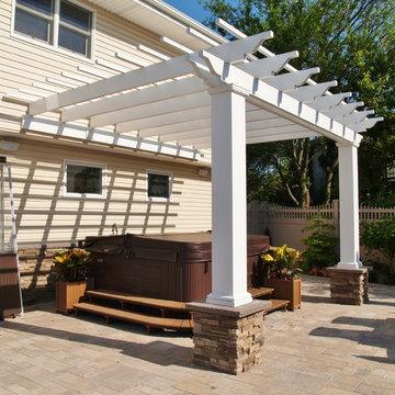 Ultimate Backyard Renovation