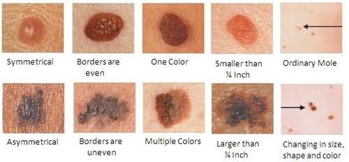 Facial moles on humans